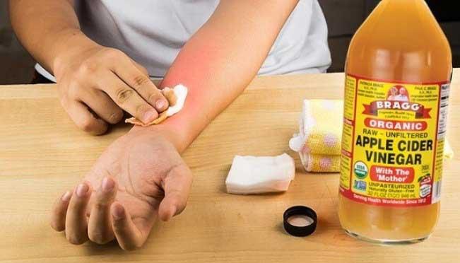 سرکه برای درمان کهیر/ هومیوپاتی برای درمان کهیر