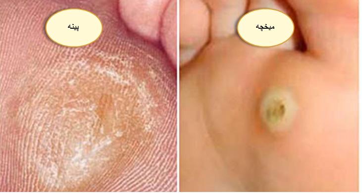 هومیوپاتی برای درمان میخچه