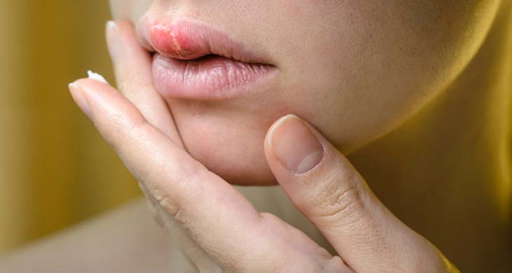 herpes / درمان تبخال تناسلی/ هومیوپاتی برای درمان تبخال