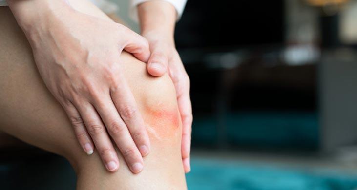 با راهکارهای هومیوپاتی برای درمان شکستگی استخوان آشنا شوید